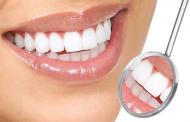 تجميل الأسنان الأمامية