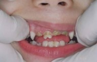 إصابات الأسنان أسبابها أنواعها نصائح للوقاية منها
