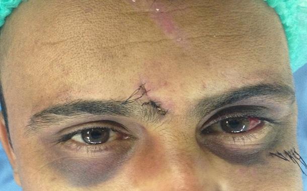 عملية ترقيع عظم محجر العين من عظم الحوض