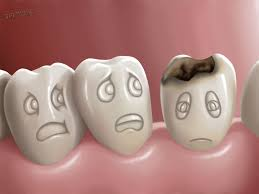 أطباء يطورون طرقا حديثة لعلاج تسوس الأسنان