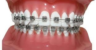 تقويم الأسنان الثابت
